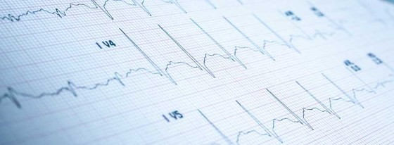 Heart rate on medical print out and pills